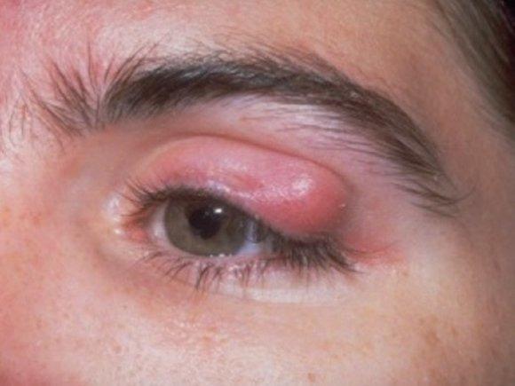 hyperopia kezelés homeopátiával