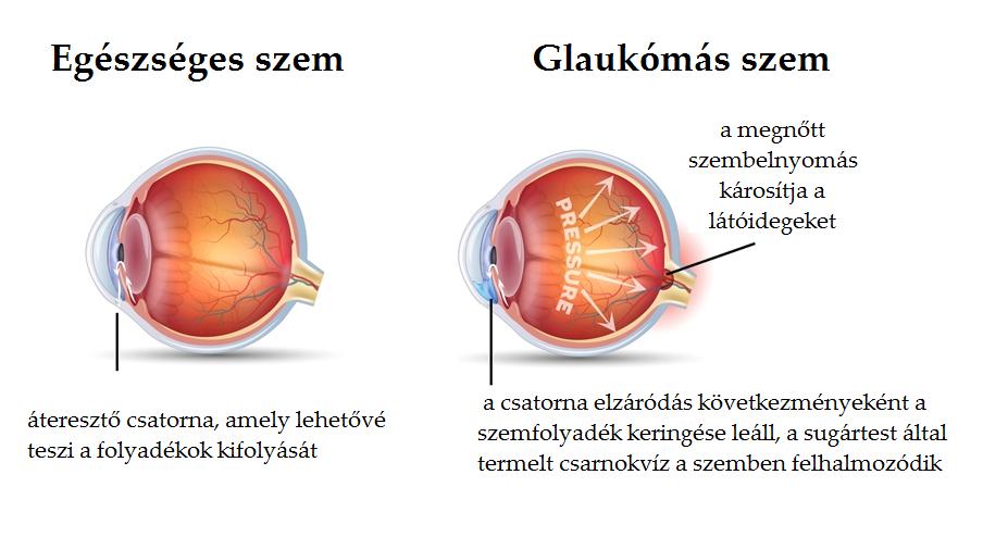 rövid távú homályos látás homályos látás a száraz szemek miatt