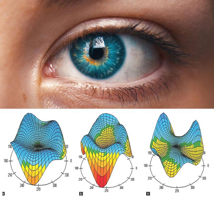 hyperopia myopia normális látás látás távollátása 1
