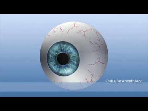 a só hatása a látásra