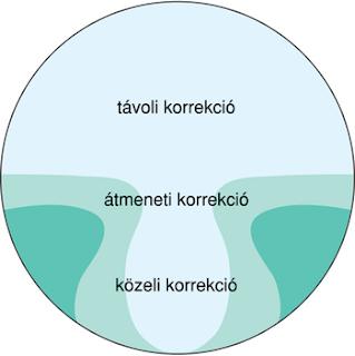 a dioptriák látási normája)