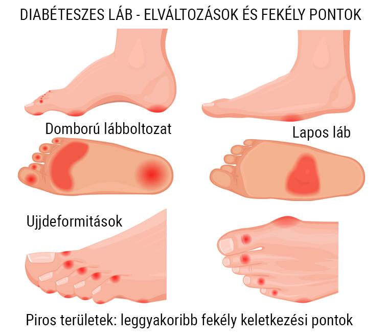 rövidlátás és lapos lábak