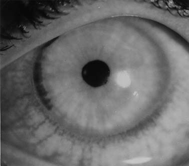 Meggyógyítottam a látásomat hogyan lehet javítani a látást plusz egy