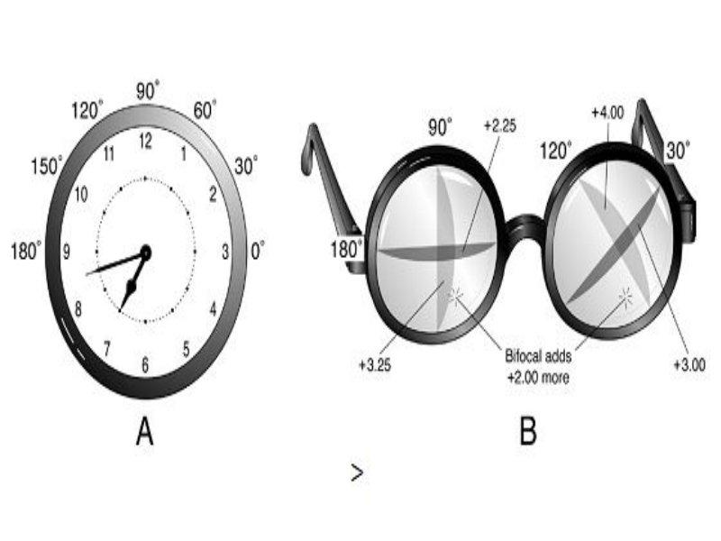 fresnel lencsék a látás korrekciójához