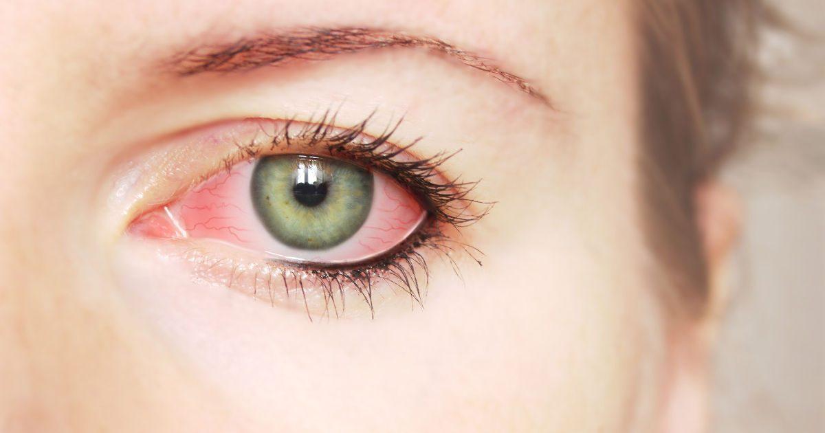 a látás zsugorodik a kötőhártya-gyulladás miatt
