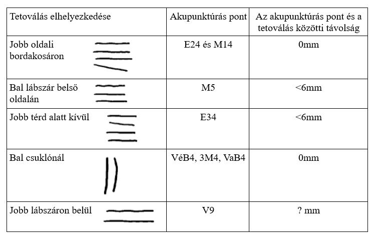 az akupunktúra gyógyítja a látást szürkehályogtól a látás elvész