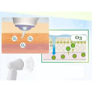 Ózonterápia - Megelőzés
