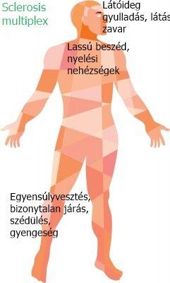 Egészség plusz látás