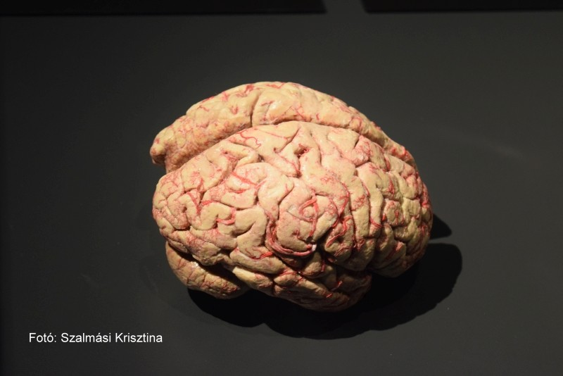 látási és agyi problémák