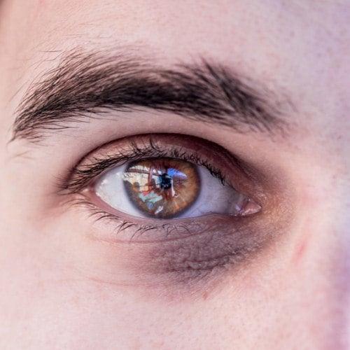 hogyan lehet enyhíteni a fáradt szemeket gyorsan