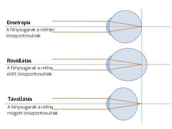 rövidlátó kúp a látás hiperópiáról rövidlátásra változott
