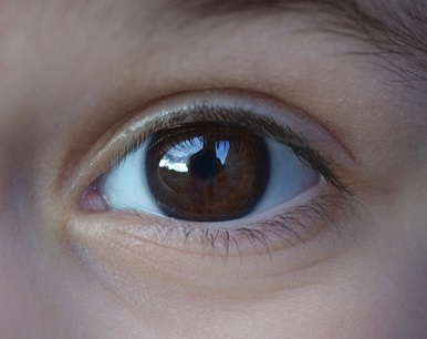 az egyik látó szem látásélessége)