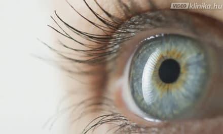 100% -os látásvideó