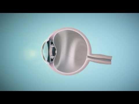 szemműtét myopia kezelése)