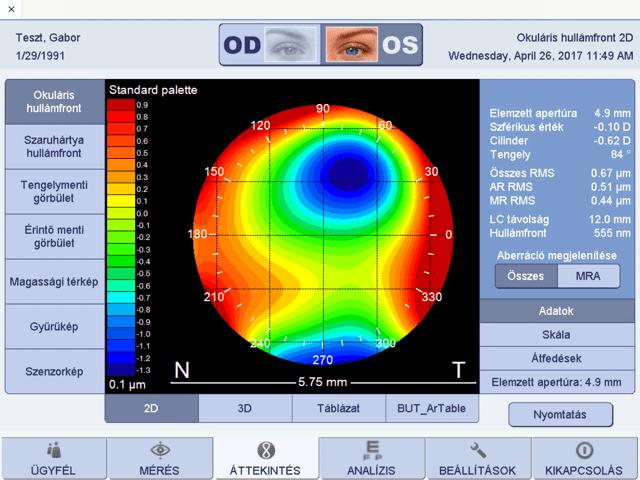 látásvizsgálati táblázat közelében a látás fokozásának eszköze
