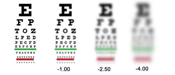 Milyen egy alapos szemvizsgálat? - ZEISS Vision Center