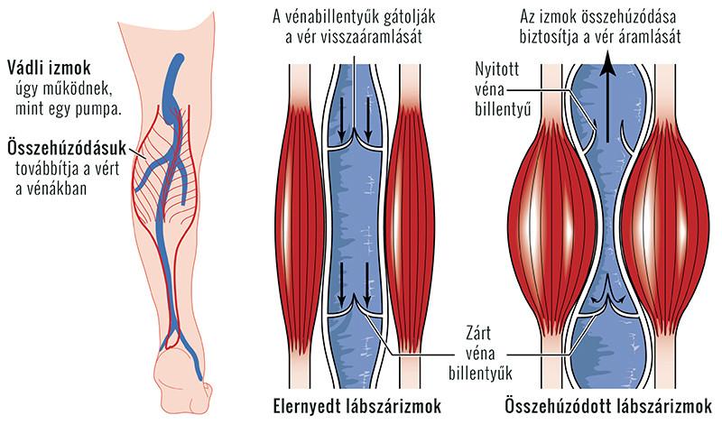 látás trombózis után)