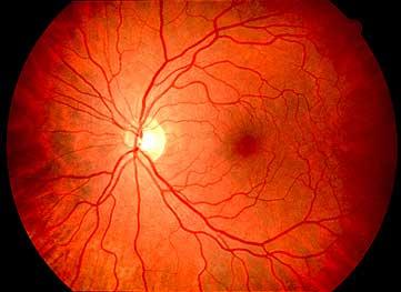 hirudoterápia a szemészetben