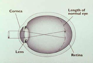 27 éves myopia vagyok állítsa helyre a dicsekvő látást