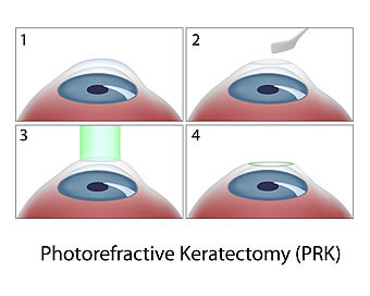 Látásjavító szemműtét. Megéri ? - Index Fórum