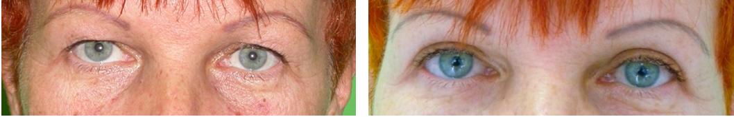 a szemhéjak sérve és a látás