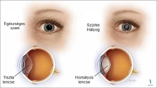 a látás 40 év után romlik)