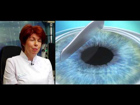 lézeres műtét a látás helyreállítására)