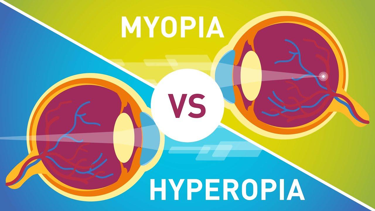 hyperopia myopia normális látás