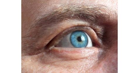 az egyik szem látása élesen romlott)