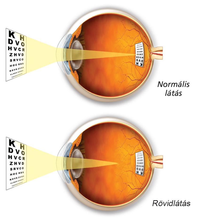 rövidlátás normális szemformával