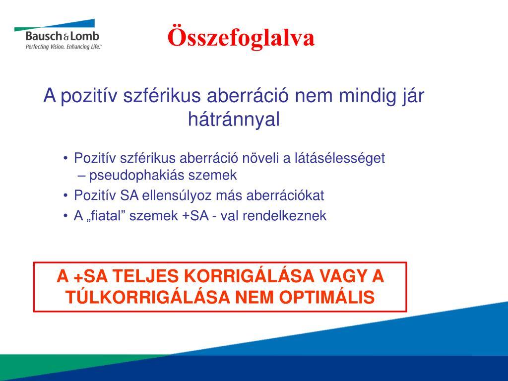 Online szem-asztigmatizmus teszt - Rövidlátás September