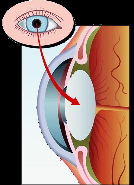 A szürke hályog tünetei és kezelése