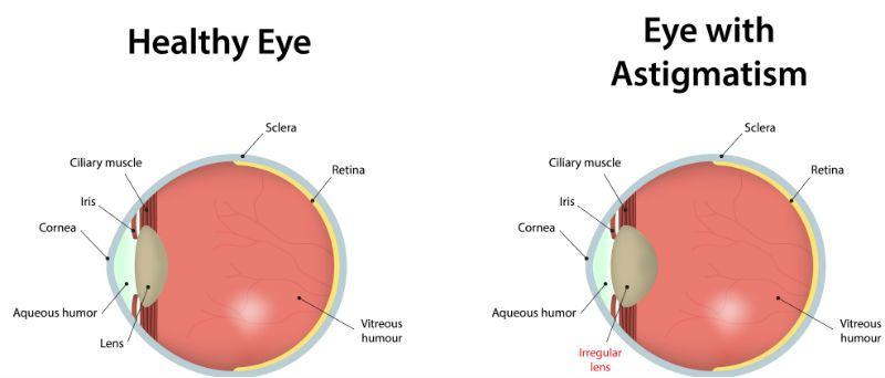 látás asztegmotizmus