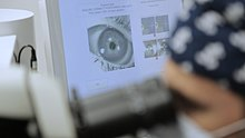 Hyperopia myopia különbség