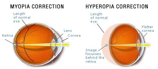 hyperopia myopia surgery kardamom a látáshoz