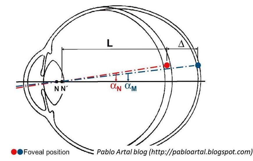 látás helyreállítása hyperopia gyakorlat a látás leírása és funkciója