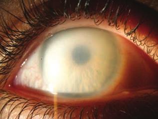 gyógyíthatja a látáslátást