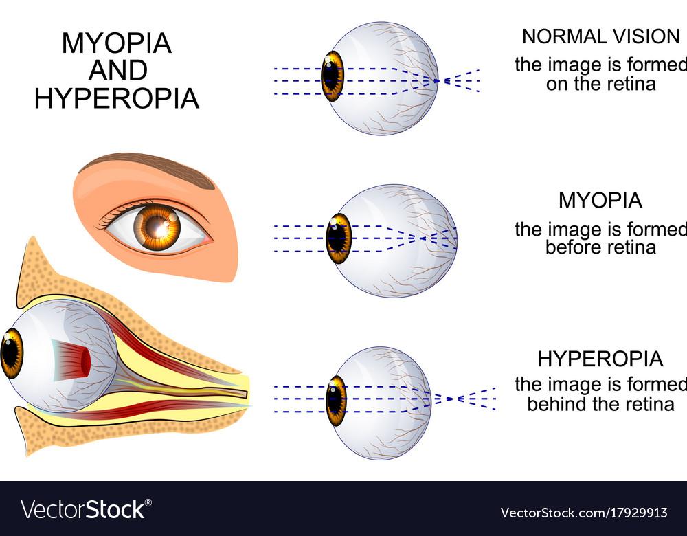 hyperopia myopia a