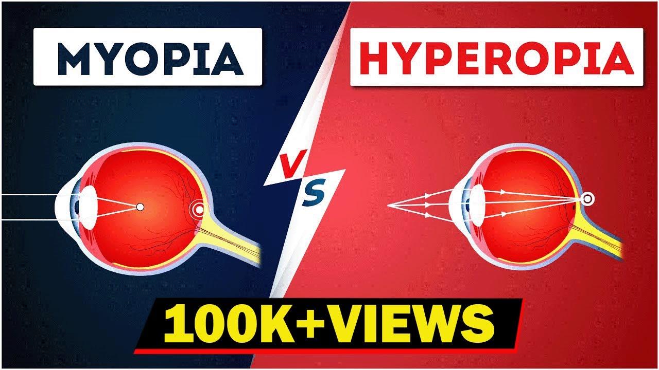 myopia és az életkorral összefüggő hyperopia