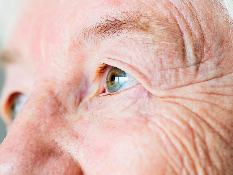 a látásromlás károsodott fejlődésre utal)