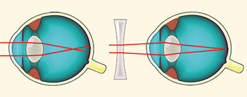 súlyosan progresszív rövidlátás myopia az egyik meridiánon