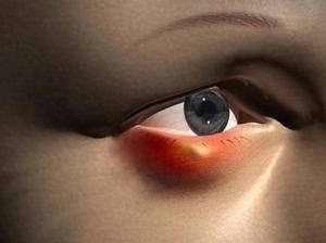 befolyásolja-e az árpa a látást)