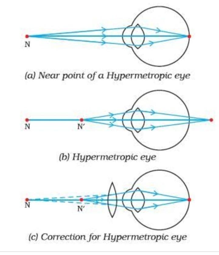 mi a különbség a myopia és a hyperopia között?