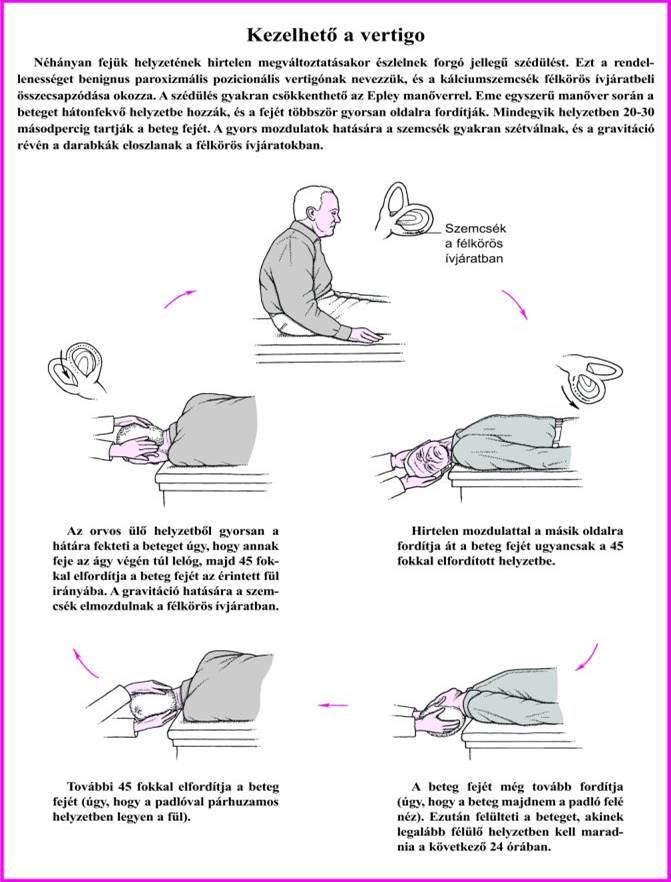 betegség szédülés homályos látás)