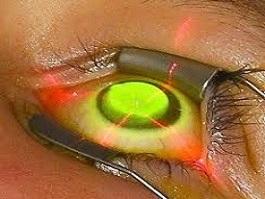 német szemészeti kezelés szaruhártya-átültetés látási problémák fordítása