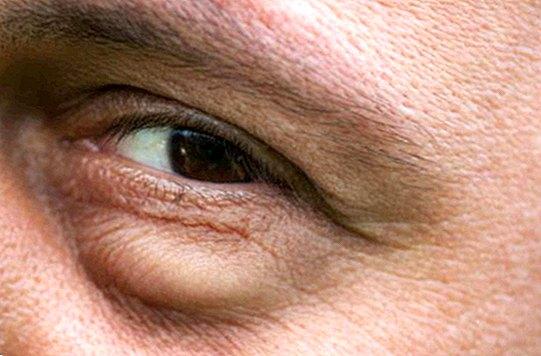 a szem fáradtságának megelőzése
