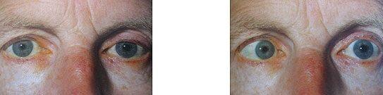 a látás kettős a szemben