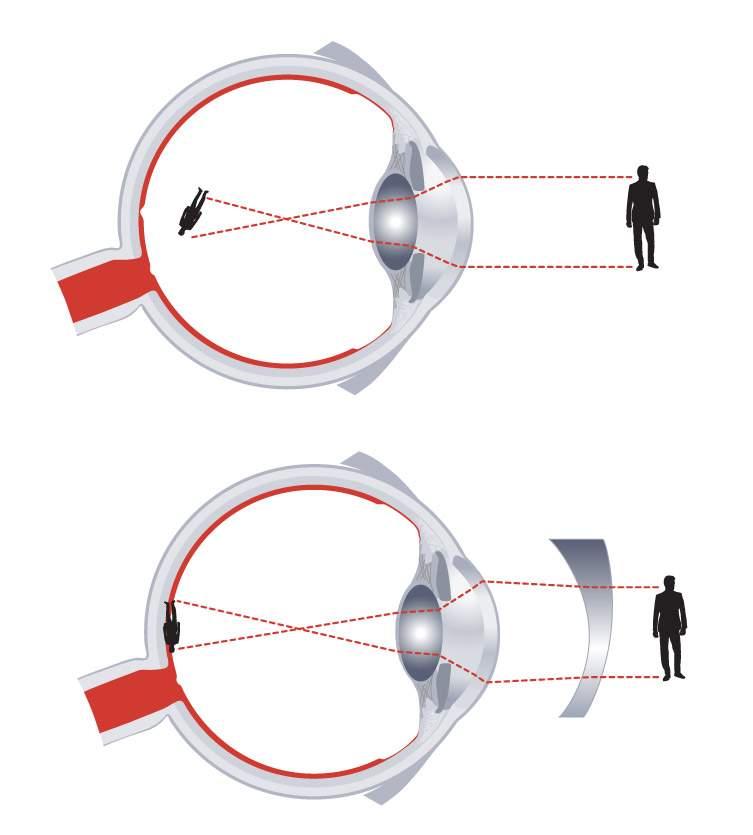 csökkent látás asztigmatizmussal)