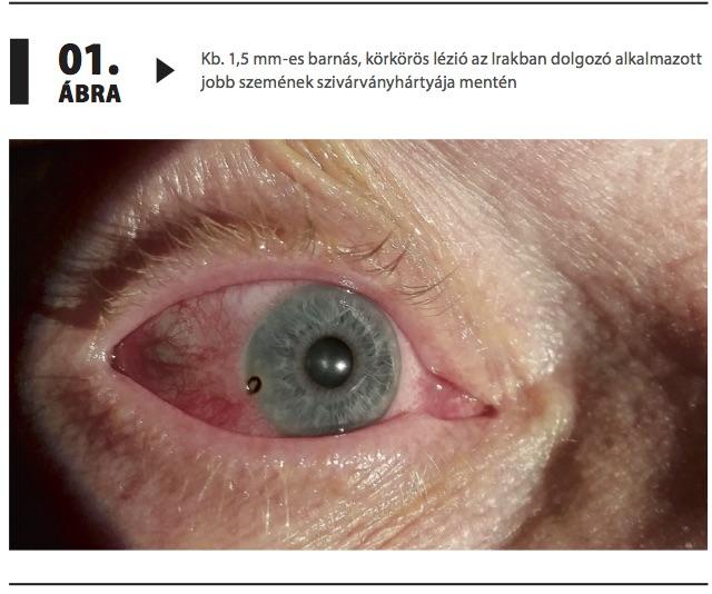 a jobb és a bal szem látásélessége)
