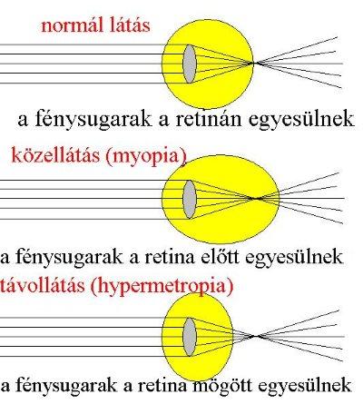 felső és alsó látás